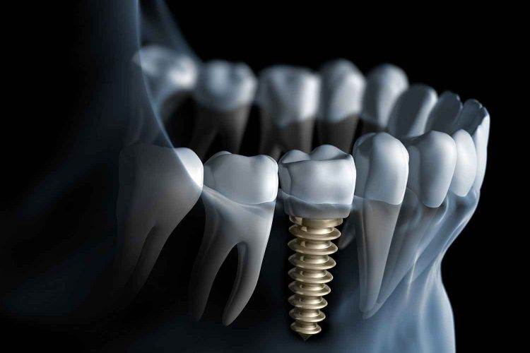 Dental Implants Ottawa